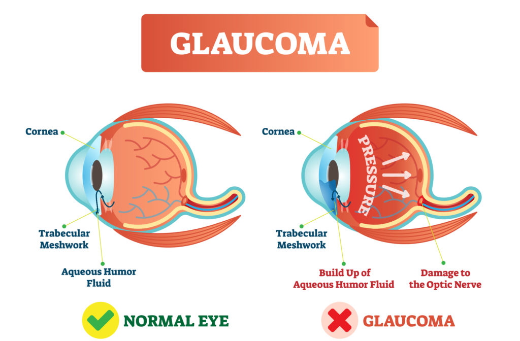 Illustration of normal eye on the left and eye with glaucoma on the right.